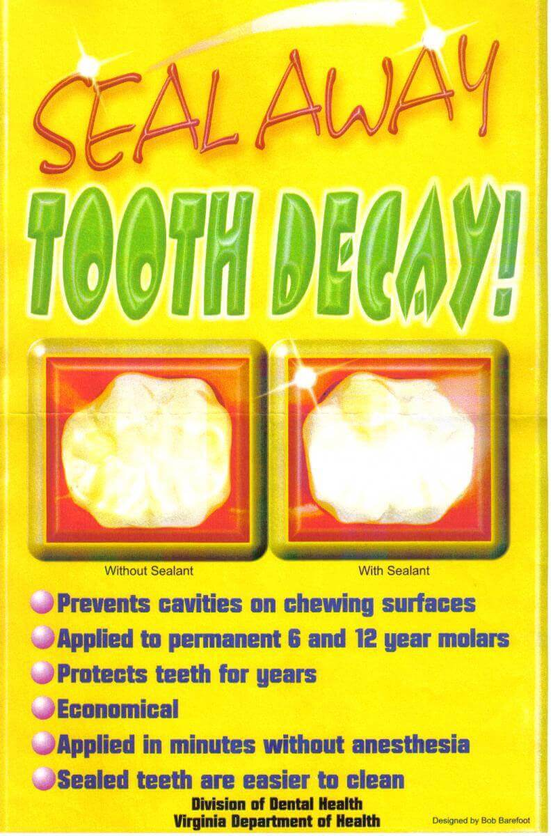 Dental Sealant Infographic