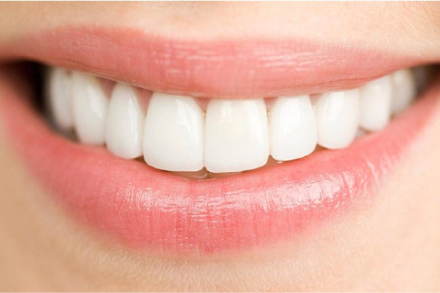 woman's closeup smile with dental veneers